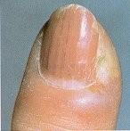 پارونیشیا (Paronychia) - اختلالات ناخن | نیل آکادمی