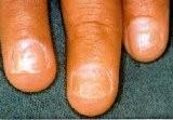 عفونت قارچی یا مخمر - اختلالات ناخن | نیل آکادمی